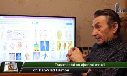 Dr. Dan-Vlad Filimon – Tratamentul cu ajutorul moxei